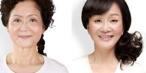 20 Chinese Women Before And After Plastic Surgery