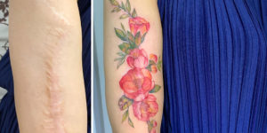 Vietnamese Tattoo Artist Masks People's Scars With Beautiful Artworks
